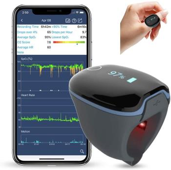 Wellue O2Ring Wearable Sleep Monitor
